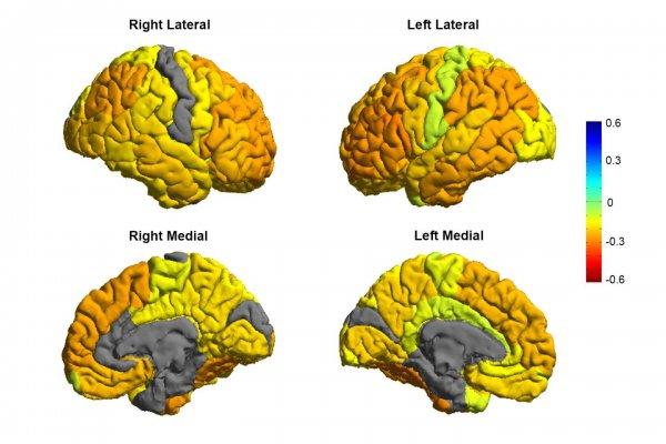 Ученые создали первую карту биполярного расстройства и его влияния на мозг
