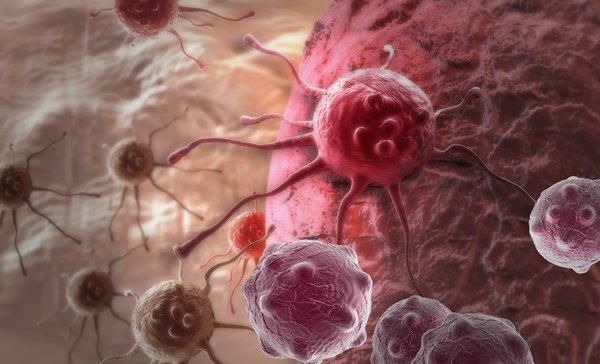Медики проследили развитие рака в теле человека