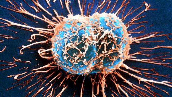 Российские ученые вплотную занялись созданием лекарств от рака