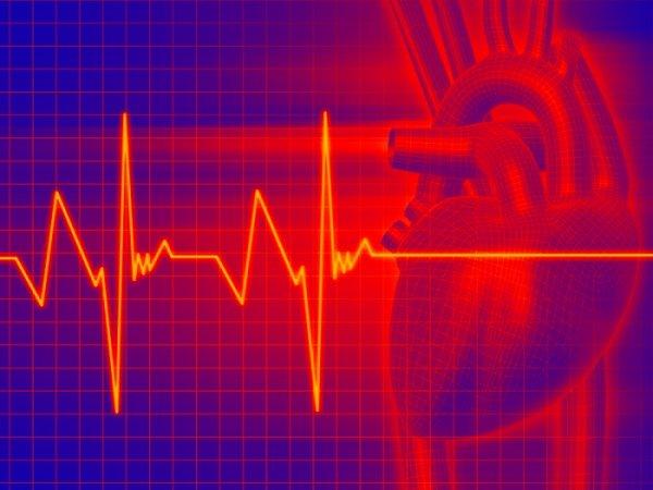 Ученые: Тахикардию можно остановить за одну минуту