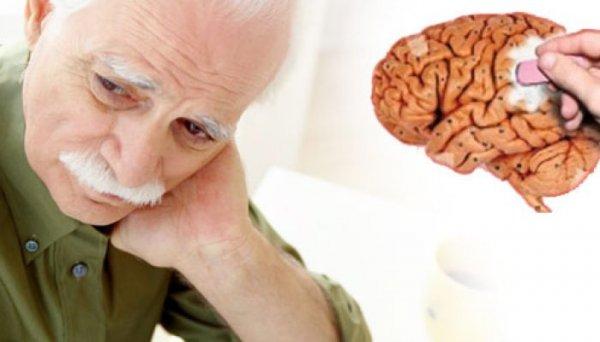 Учёные: В 2100 году каждый второй житель Земли заболеет синдромом Альцгеймера