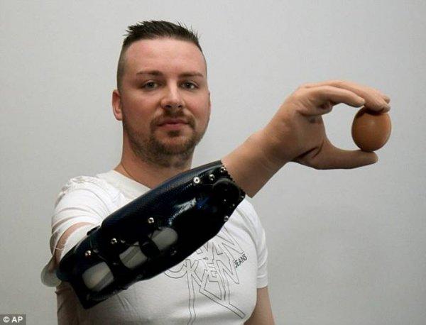 В Америке создали бионический протез руки и назвали его в честь Люка Скайуокера