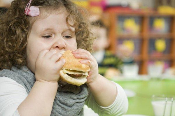 Детское ожирение может привести к болезни суставов — Ученые