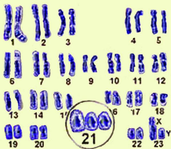 Ученые: Тайна происхождения синдрома Дауна раскрыта
