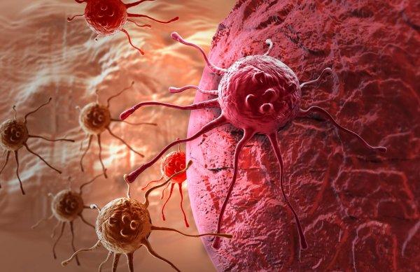 Ученые: Сахар поможет диагностировать опухоль на ранних стадиях