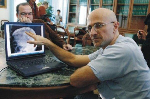 Ученые еще на шаг приблизились  к реализации пересадки человеческой головы