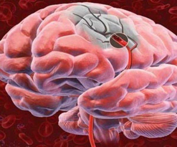 Прозрачный мозг показал, каким образом инсульт повреждает кровеносные сосуды