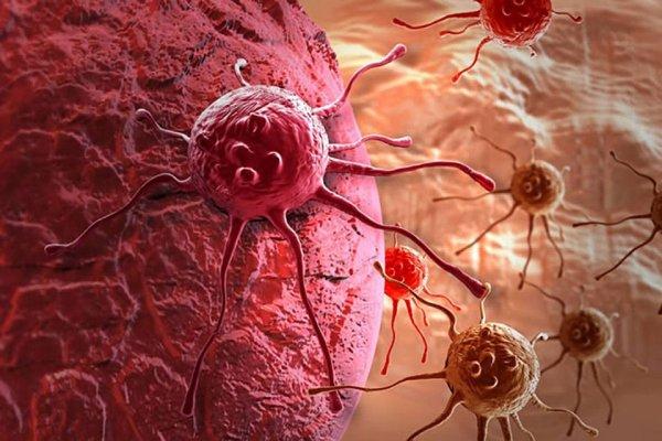Ученые из США «отключили» питание раковой опухоли