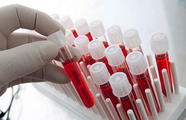 Ученые связали болезни сердца с группой крови и загрязнением воздуха