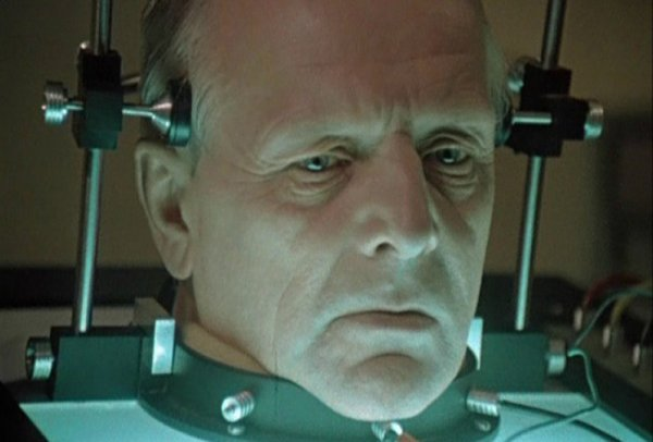 В Китае осуществили первую в мире пересадку головы человека