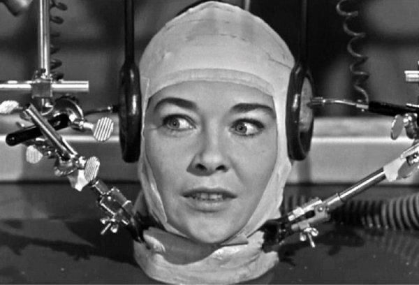 Хирург поделился подробностями пересадки человеческой головы