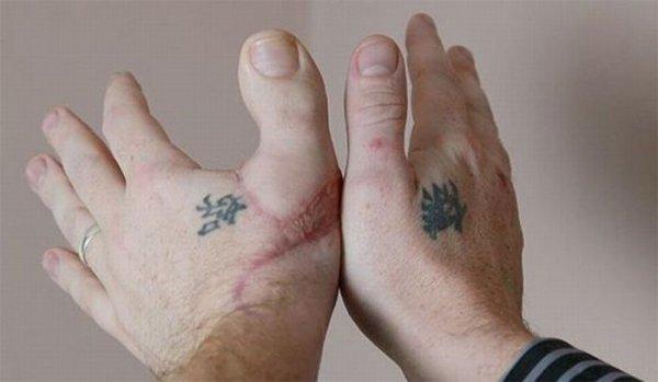 В Томске хирурги пересадили пациенту большой палец ноги на кисть руки