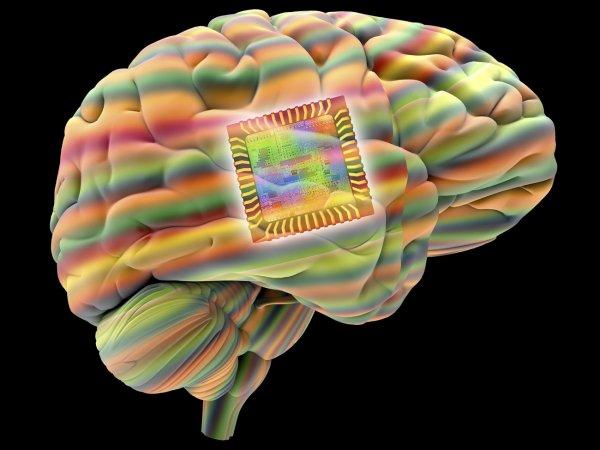 Ученые внедрили в мозг человека имплант, управляющий настроением