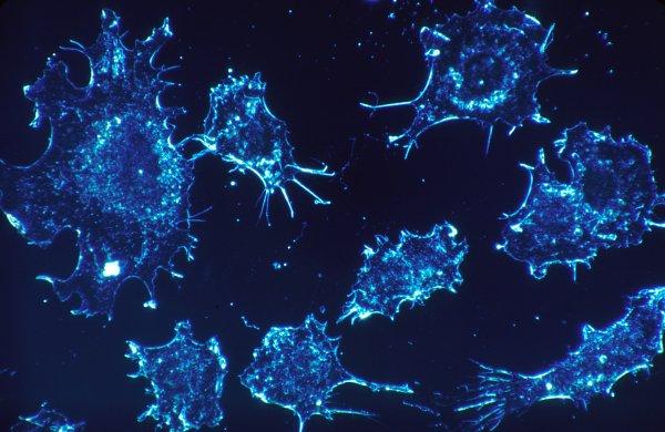 Ученые нашли фермент, который может победить рак груди