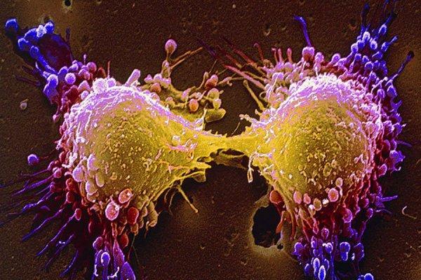 Российские ученые выяснили, как заставить раковые клетки самоуничтожаться