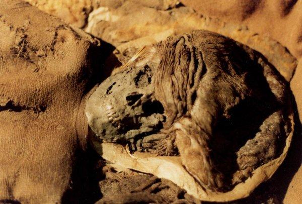 В останках древнеегипетской мумии нашли злокачественную опухоль