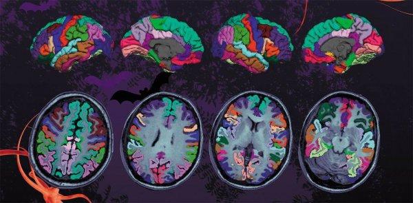 Исследователи предлагают ввести новый термин для влияния микрофлоры на нейродегенерацию