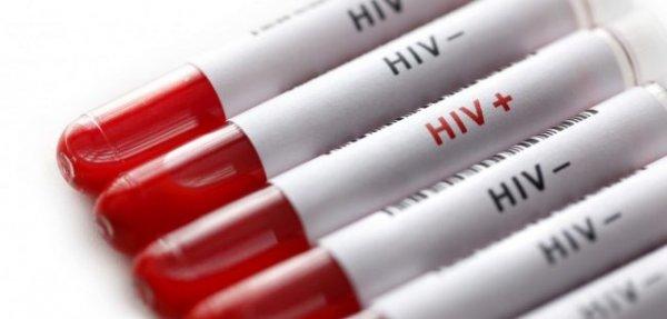 Учёные выяснили, как в организме человека оказался ВИЧ